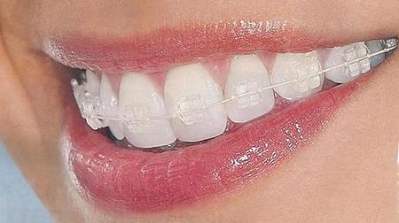 Как брекеты выравнивают зубы? Сколько стоит улыбка на миллион? — Про исправление прикуса и брекеты