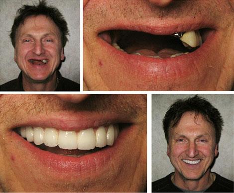 Удалили передний зуб как ходить на работу удалённая работа через телефон