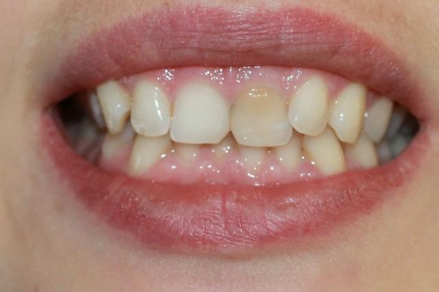 Внутриканальное эндодонтическое отбеливание зубов