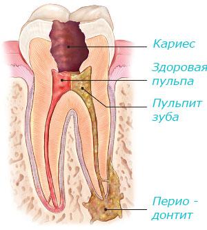 Кариес, пульпит зуба и периодонтит