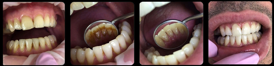 Чистка зубов от зубного камня фото до и после