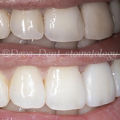 Частичная реставрация зубов