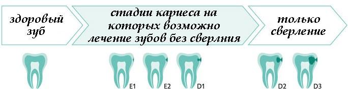 Стадии развития кариеса зубов