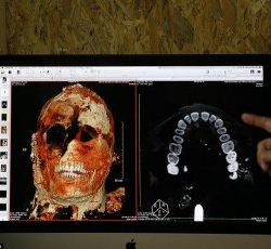 Почему у древних римлян были идеальные зубы