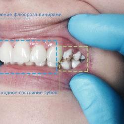 Флюороз зубов — лечение отбеливанием