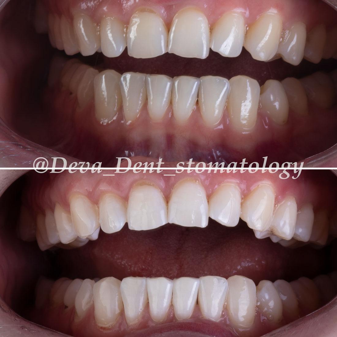 Выполненные отбеливания зубов