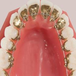 Особенности ортодонтического лечения