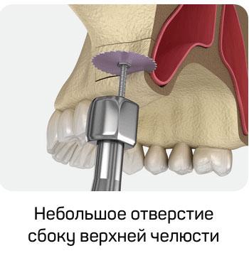 В костной ткани выполняется небольшое отверстие