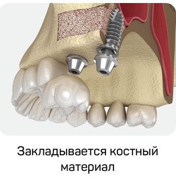 В образовавшуюся полость закладывается костнопластический материал