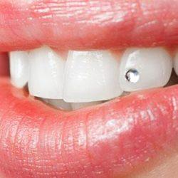 Анонс статьи — Украшения для зубов
