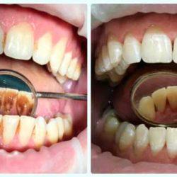 Анонс статьи — О профессиональной гигиене полости рта