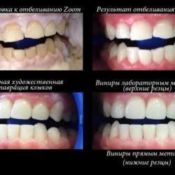 Экскурс по этапам художественной реставрации зубов