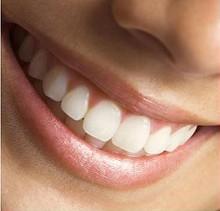 Что Invisalign может сделать для здоровья полости рта
