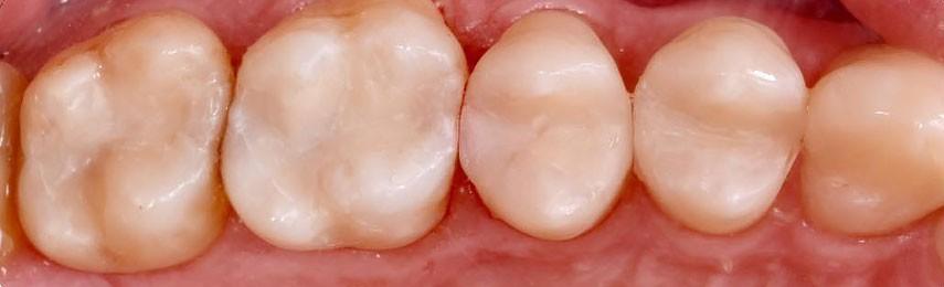 Лечение зубов в Москве. Отзывы на лечение зубов, стоимость