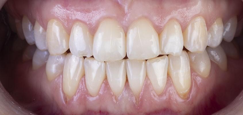 Инновационная система отбеливания зубов Klox Fast&Mild