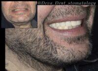 Бюгельный протез. Фото До и После.