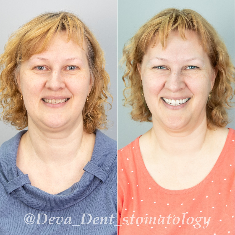 Фото тотальных реставраций зубов
