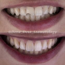 Художественная реставрация зуба при переломе