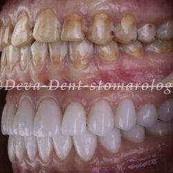Тотальное протезирование зубов керамическими коронками