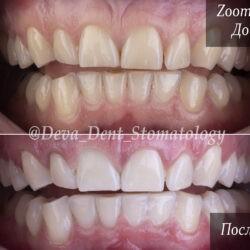Фото отбеливания Zoom 4 До и После