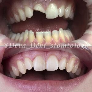 Лечение перелома зуба
