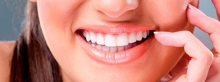 Шикарная улыбка с керамическими винирами