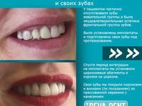 Протезирование на имплантатах всех зубов 3