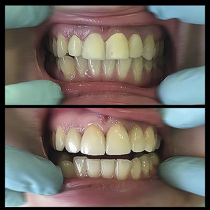 лечение зубов винирами