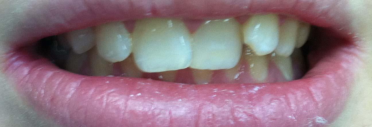 отбеливание зубов klox отзывы