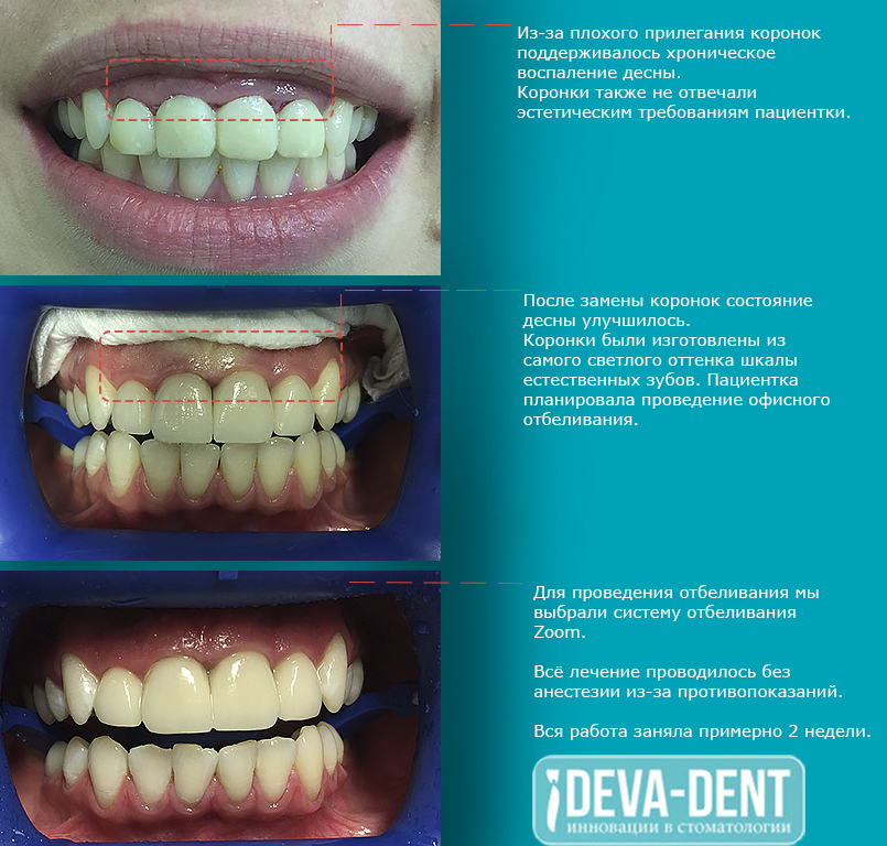 Прополис для здоровья ваших зубов