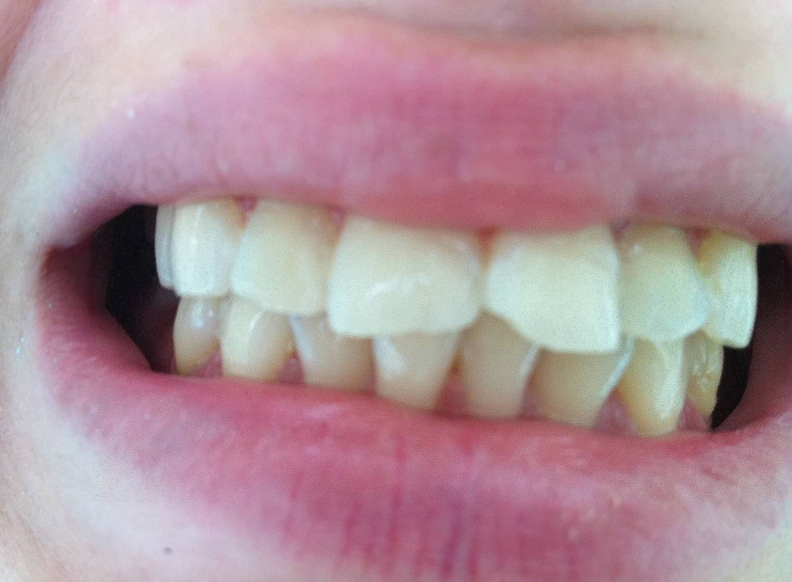 отбеливание зубов zoom 4 клиника