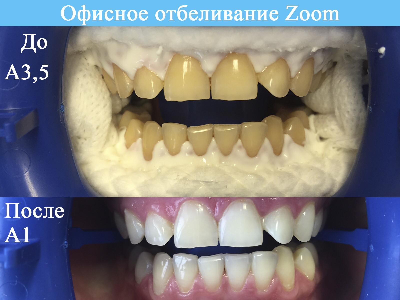 Отбеливание Zoom до и после