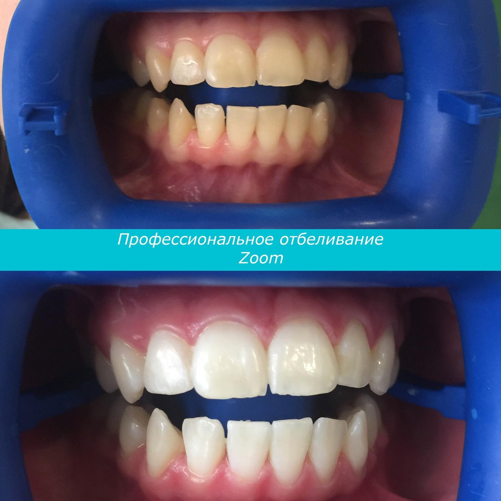 отбеливание зубов при беременности можно