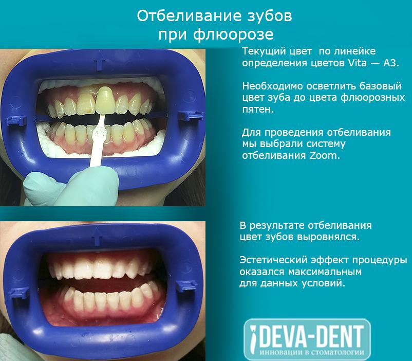 внутриканальное отбеливание зуба методика проведения