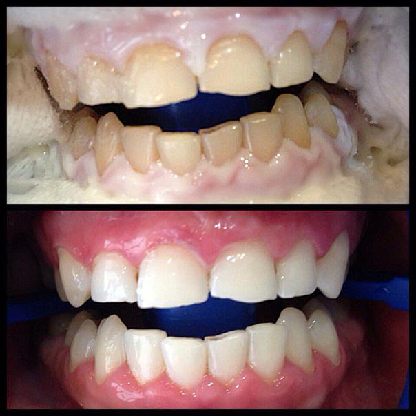 Купить для отбеливания зубов в иваново