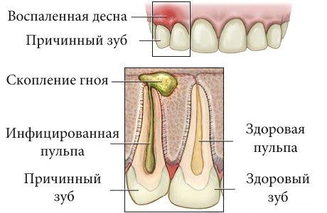 Зуб мудрости гной домашние условия