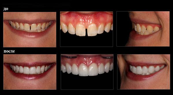 виниры на 2 передних зуба
